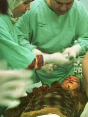 Médicos examinando el cadáver de Somaeah Hassan, una niña de seis años asesinada durante un ataque israel� a un campo de refugiados