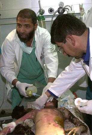 Médicos atendiendo a un niño de 8 años gravemente quemado en un bombardeo israel�