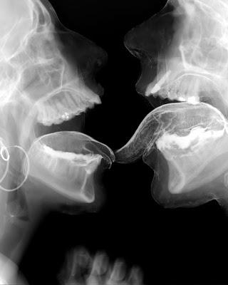 sexo radiografias